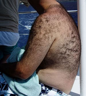 Androgenic body hair, photograph taken on Maui...